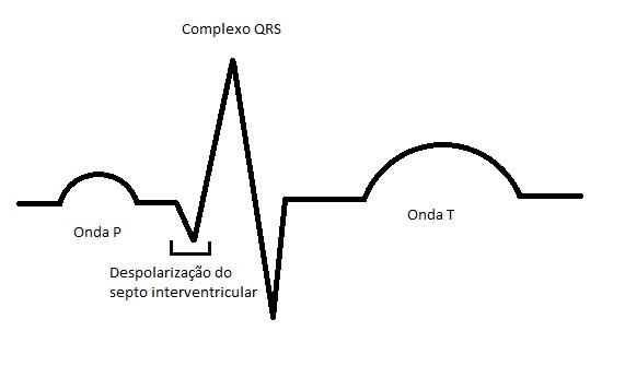 Arquivo:QRS.jpg